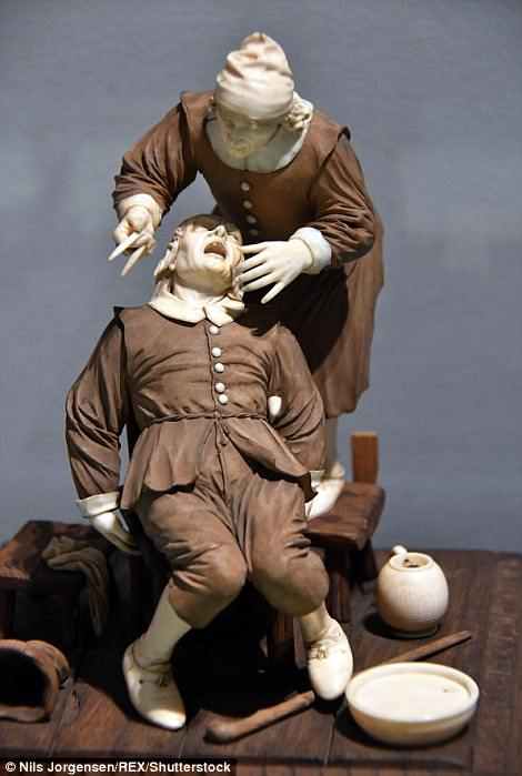 A European sculpture of a barber-surgeon reminds viewers what a trip to the dentist was like in the 17th century